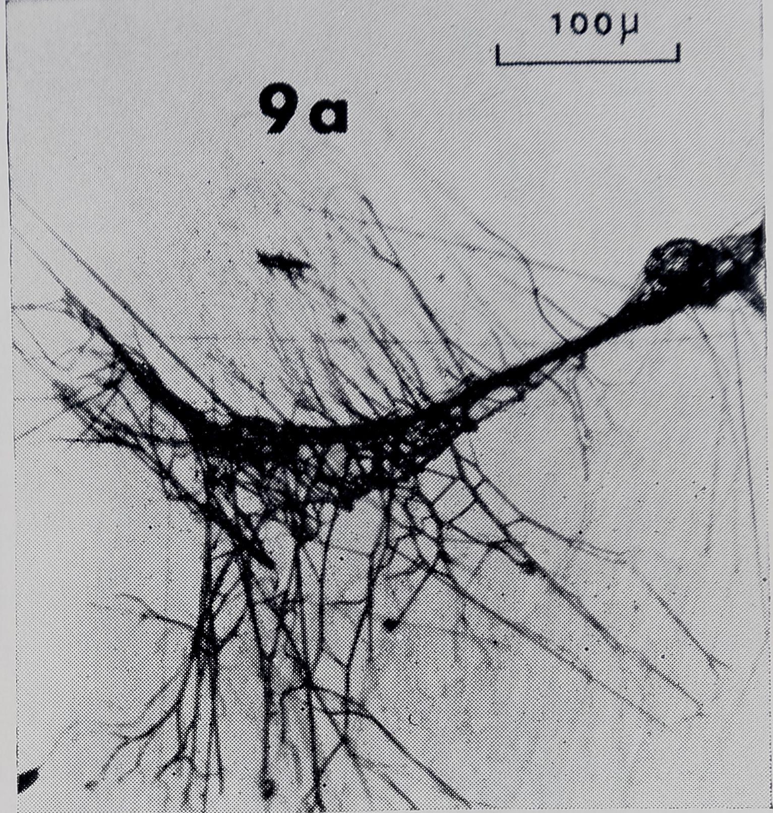 1971-FineStructureOfTheThread-15