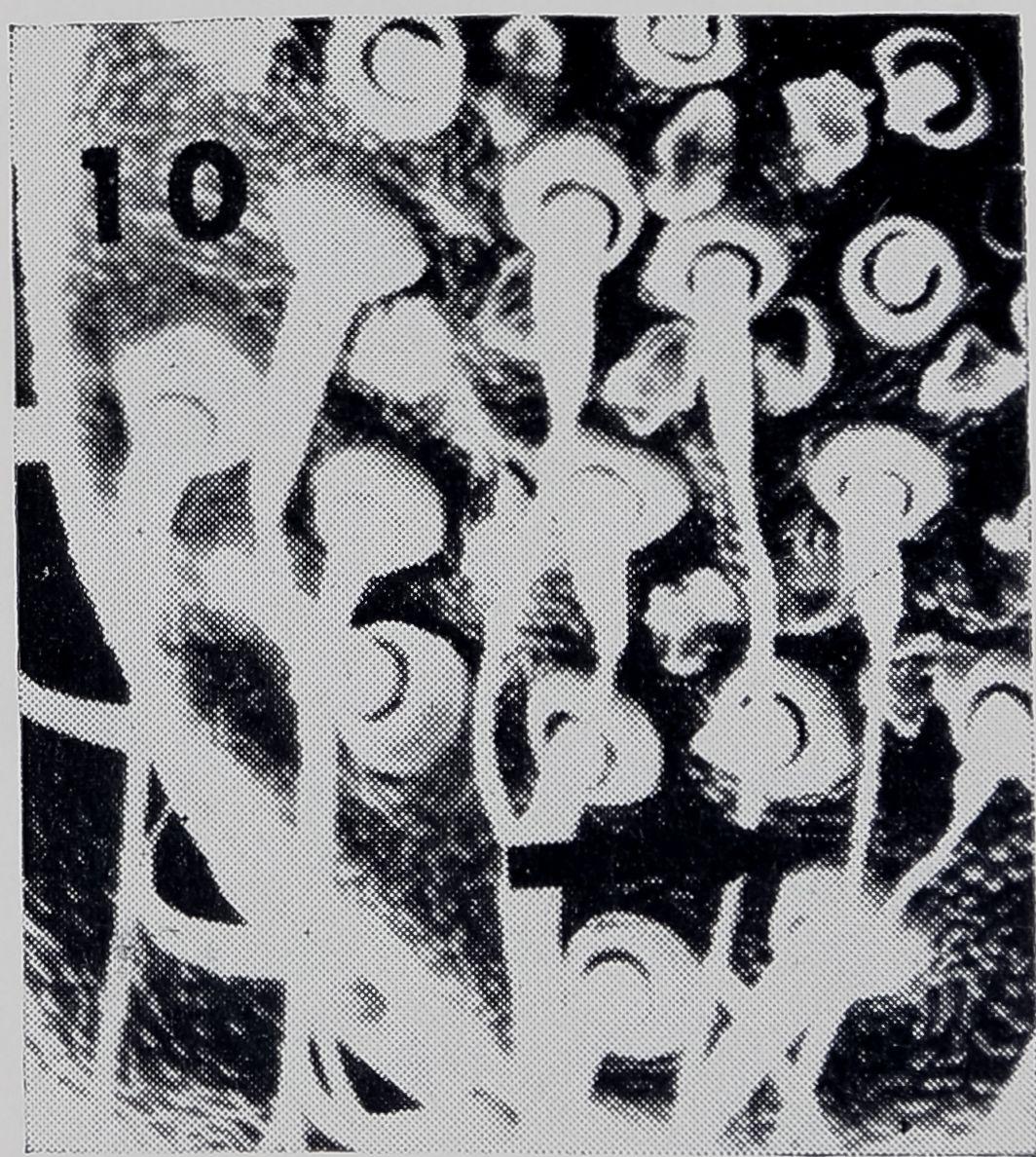 1971-FineStructureOfTheThread-17